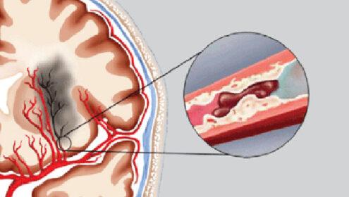Tai biến mạch máu não là gì, làm sao xử lý được tai biến?